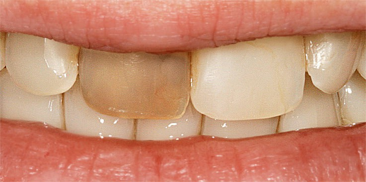 Nach grau verfärbt zahn wurzelbehandlung sich Welche Füllung