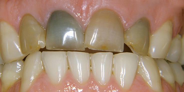 Zahnschmerzen nach wurzelfüllung | Sind Schmerzen nach