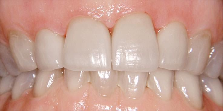 Ästhetischer Zahnersatz & exzellentes Zahngefühl :: Dr