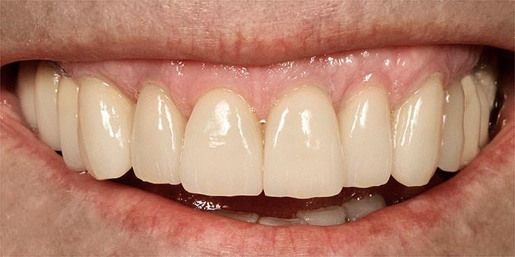 Nachher zahnfleischtransplantation vorher Zahnfleischtransplantat Nach