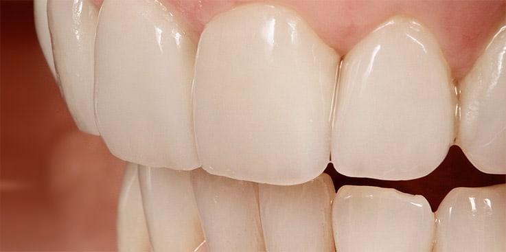 Zähne krumme 5 Wege,