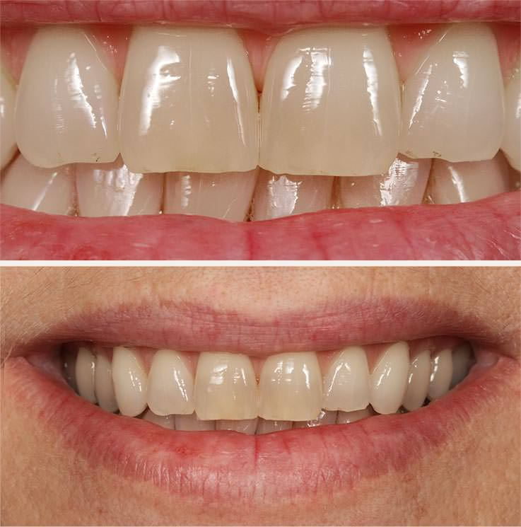 Vor dem Bleaching II: stark verfärbte Zahnoberflächen. / Dr. Rüdiger Hansen, Zahnarzt München