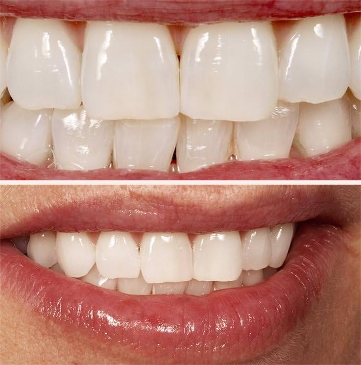 Nach dem Bleaching II: Aufhellung aller Zähne um mehrere Farbstufen. / Dr. Rüdiger Hansen, Zahnarzt München