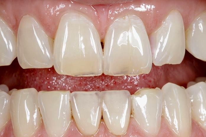 Bleaching bei blau-grau-transparent erscheinenden Zähnen. / Dr. Rüdiger Hansen, Zahnarzt München