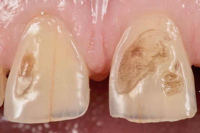 Bleaching bei fleckigen Zähnen. / Dr. Rüdiger Hansen, Zahnarzt München