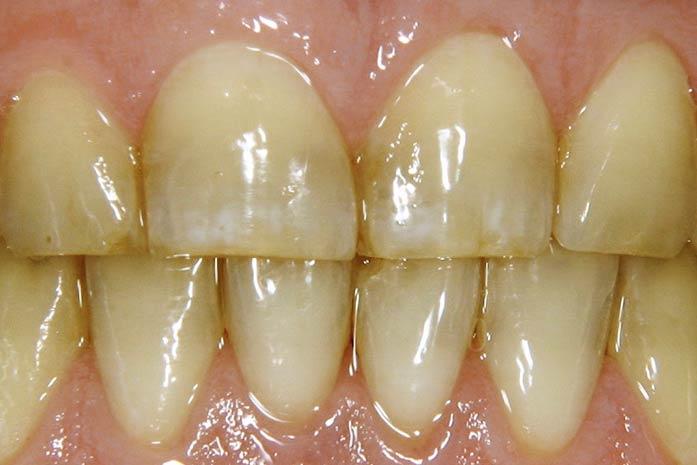Bleaching bei verfärbtem Zahnschmelz durch starken Nikotingenuß. / Dr. Rüdiger Hansen, Zahnarzt München