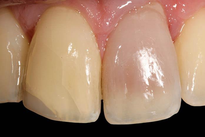 Bleaching bei rosa verfärbten Zähnen. / Dr. Rüdiger Hansen, Zahnarzt München