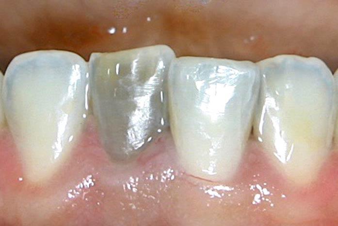Bleaching bei schwarz oder braun verfärbten Zähnen. / Dr. Rüdiger Hansen, Zahnarzt München