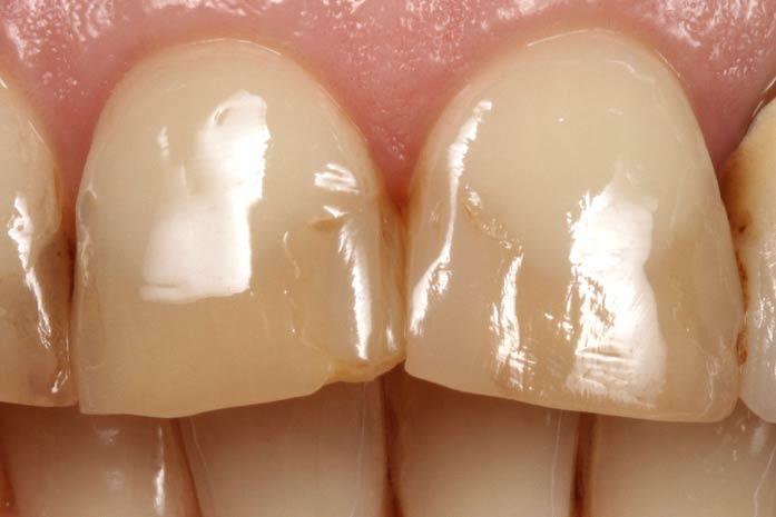 Bleaching bei tiefen Verfärbungen der Zähne. / Dr. Rüdiger Hansen, Zahnarzt München