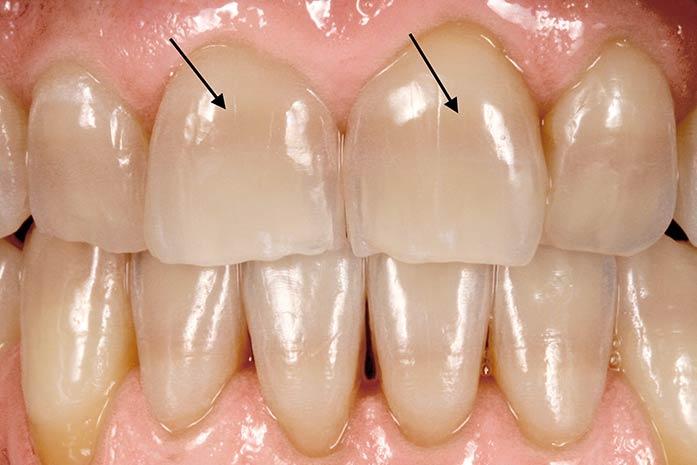 Bleaching bei Streifen innerhalb der Zähne. / Dr. Rüdiger Hansen, Zahnarzt München