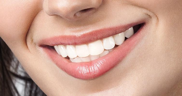 Unser Bleaching ermöglicht eine Zahnaufhellung bis zu acht Helligkeitsstufen. / Dr. Rüdiger Hansen, Zahnarzt München