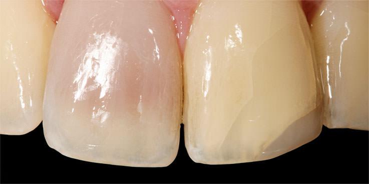 Vorher: Endodontie und Bleaching bei inneren Verfärbungen. / Dr. Rüdiger Hansen, Zahnarzt München