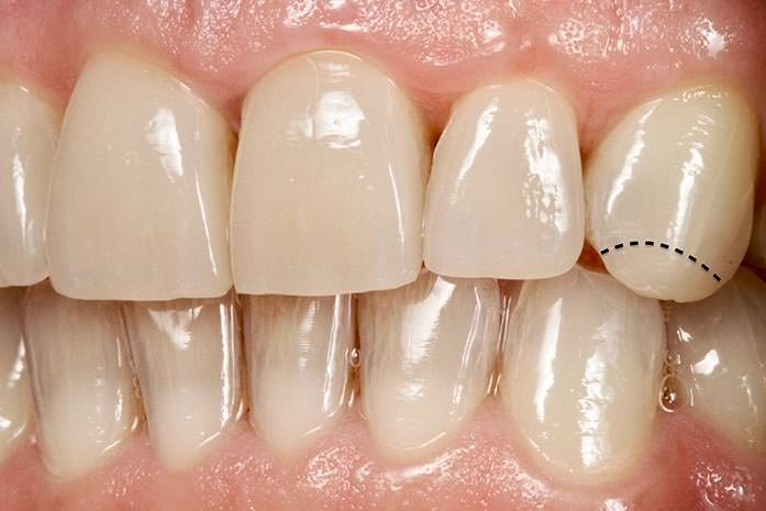 Kleine, aufgeklebte Keramikspitzen zur Ergänzung abgeknirschter Zahnsubstanz an Eckzähnen oder Frontzähnen. / Dr. Rüdiger Hansen, Zahnarzt München