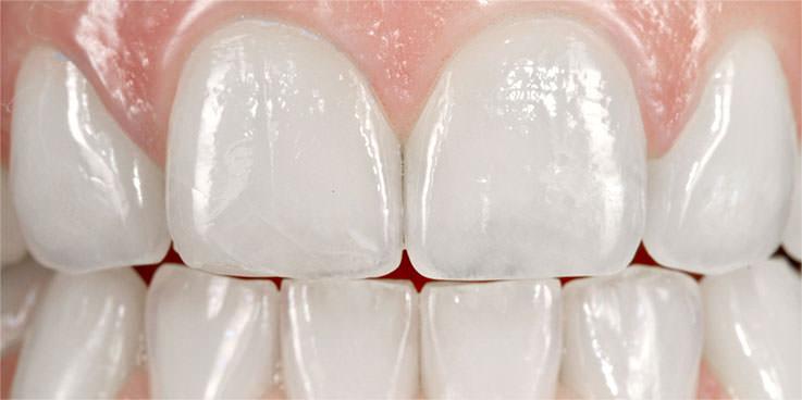 Nach dem Bleaching: Die Zähne sind deutlich heller und wirken brillant weiss. / Dr. Rüdiger Hansen, Zahnarzt München