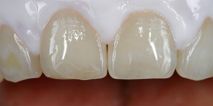 Vor dem Bleaching II: Der Zahnfleischschutz verhindert Austrocknen von Zahnhälsen und Zahnfleisch. / Dr. Rüdiger Hansen, Zahnarzt München