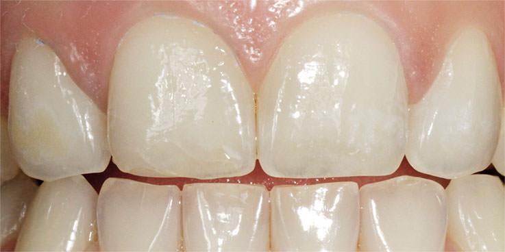 Vor dem Bleaching I: gelblich verfärbte Zähne. / Dr. Rüdiger Hansen, Zahnarzt München
