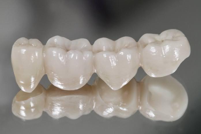 Brücken zum Ersatz von bis zu 3 fehlenden Zähnen. / Dr. Rüdiger Hansen, Zahnarzt München