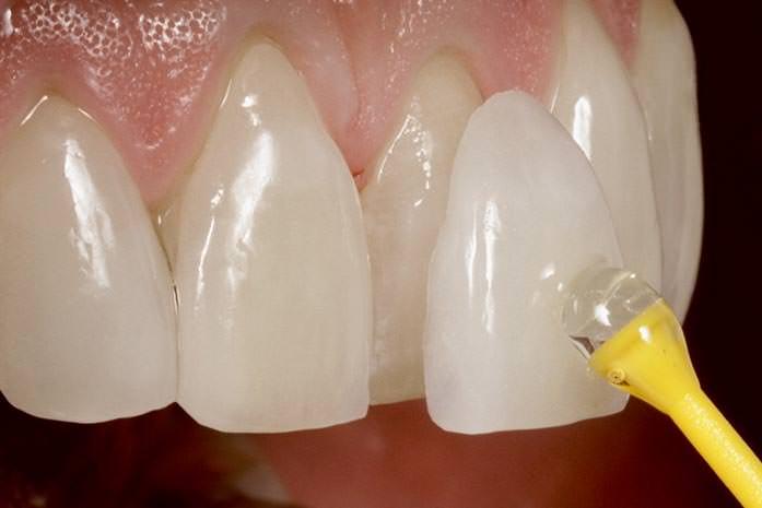 Veneer – eine dünne Verblendschale aus Keramik. / Dr. Rüdiger Hansen, Zahnarzt München