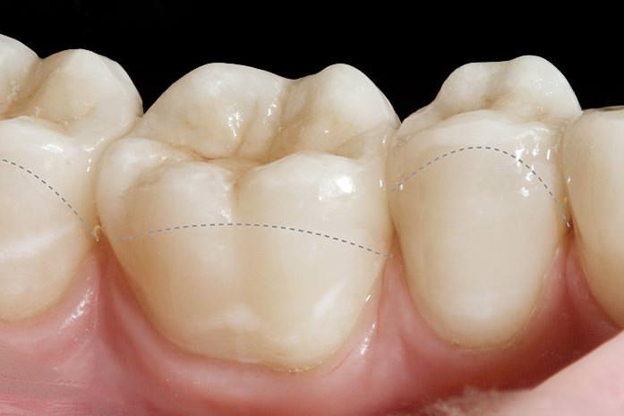 Teilkronen für widerstandsfähige, zierliche Zahnrekonstruktionen. / Dr. Rüdiger Hansen, Zahnarzt München